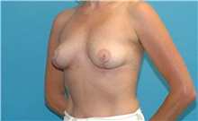 Breast Implant Removal After Photo by Scott Sattler, MD,  FACS; Seattle, WA - Case 41856