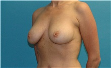 Breast Implant Removal Before Photo by Scott Sattler, MD,  FACS; Seattle, WA - Case 41856