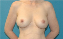 Breast Implant Revision After Photo by Scott Sattler, MD,  FACS; Seattle, WA - Case 41874