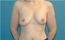 Breast Implant Revision Before Photo by Scott Sattler, MD,  FACS; Seattle, WA - Case 41874