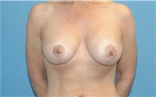Breast Lift After Photo by Scott Sattler, MD,  FACS; Seattle, WA - Case 41896