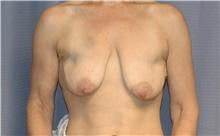 Breast Lift Before Photo by Scott Sattler, MD,  FACS; Seattle, WA - Case 41896