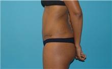Tummy Tuck After Photo by Scott Sattler, MD,  FACS; Seattle, WA - Case 41986