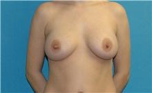 Breast Augmentation After Photo by Scott Sattler, MD,  FACS; Seattle, WA - Case 42468