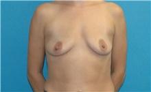 Breast Augmentation Before Photo by Scott Sattler, MD,  FACS; Seattle, WA - Case 42468