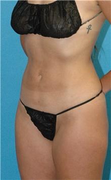 Liposuction After Photo by Scott Sattler, MD,  FACS; Seattle, WA - Case 43612
