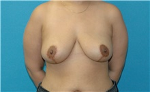 Breast Reduction After Photo by Scott Sattler, MD,  FACS; Seattle, WA - Case 43959