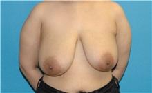 Breast Reduction Before Photo by Scott Sattler, MD,  FACS; Seattle, WA - Case 43959