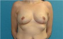 Breast Lift After Photo by Scott Sattler, MD,  FACS; Seattle, WA - Case 44695