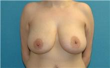 Breast Lift Before Photo by Scott Sattler, MD,  FACS; Seattle, WA - Case 44695