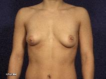 Breast Lift Before Photo by Michael Milan, MD; Auburn Hills, MI - Case 8319