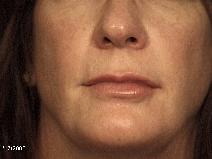 Dermal Fillers After Photo by Michael Milan, MD; Auburn Hills, MI - Case 9083
