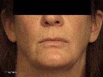 Dermal Fillers Before Photo by Michael Milan, MD; Auburn Hills, MI - Case 9083