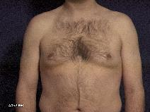 Male Breast Reduction Before Photo by Michael Milan, MD; Auburn Hills, MI - Case 9084