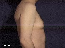 Male Breast Reduction Before Photo by Michael Milan, MD; Auburn Hills, MI - Case 9085