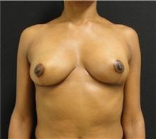 Breast Reduction After Photo by Dzifa Kpodzo, MD; Atlanta, GA - Case 33002