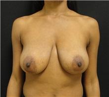 Breast Reduction Before Photo by Dzifa Kpodzo, MD; Atlanta, GA - Case 33002