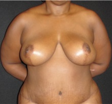 Breast Reduction After Photo by Dzifa Kpodzo, MD; Atlanta, GA - Case 33005