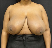 Breast Reduction Before Photo by Dzifa Kpodzo, MD; Atlanta, GA - Case 33005