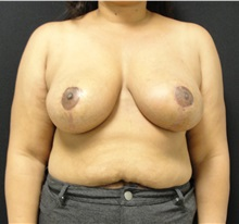 Breast Reduction After Photo by Dzifa Kpodzo, MD; Atlanta, GA - Case 33006