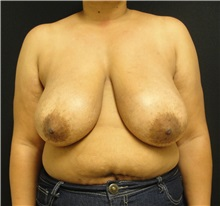 Breast Reduction Before Photo by Dzifa Kpodzo, MD; Atlanta, GA - Case 33006