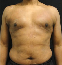 Male Breast Reduction After Photo by Dzifa Kpodzo, MD; Atlanta, GA - Case 33007