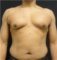 Male Breast Reduction Before Photo by Dzifa Kpodzo, MD; Atlanta, GA - Case 33007