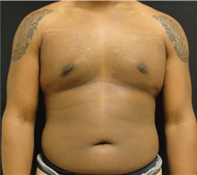 Male Breast Reduction After Photo by Dzifa Kpodzo, MD; Atlanta, GA - Case 33008