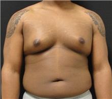 Male Breast Reduction Before Photo by Dzifa Kpodzo, MD; Atlanta, GA - Case 33008