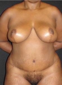 Tummy Tuck After Photo by Dzifa Kpodzo, MD; Atlanta, GA - Case 33009