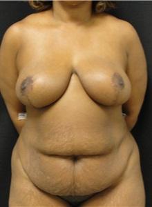 Tummy Tuck Before Photo by Dzifa Kpodzo, MD; Atlanta, GA - Case 33009