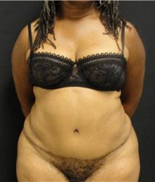 Tummy Tuck After Photo by Dzifa Kpodzo, MD; Atlanta, GA - Case 33011