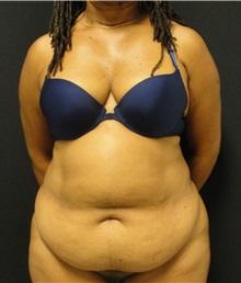 Tummy Tuck Before Photo by Dzifa Kpodzo, MD; Atlanta, GA - Case 33011