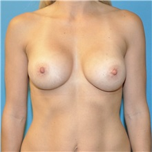 Breast Augmentation After Photo by Joshua Cooper, MD; Seattle, WA - Case 34330