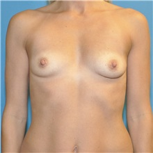 Breast Augmentation Before Photo by Joshua Cooper, MD; Seattle, WA - Case 34330