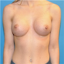 Breast Augmentation After Photo by Joshua Cooper, MD; Seattle, WA - Case 34334