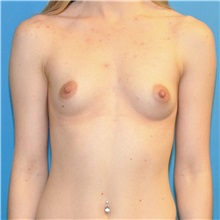 Breast Augmentation Before Photo by Joshua Cooper, MD; Seattle, WA - Case 34334
