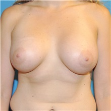 Breast Augmentation After Photo by Joshua Cooper, MD; Seattle, WA - Case 34372