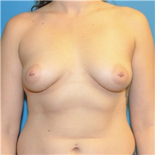 Breast Augmentation Before Photo by Joshua Cooper, MD; Seattle, WA - Case 34372