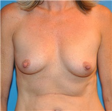Breast Augmentation Before Photo by Joshua Cooper, MD; Seattle, WA - Case 34373