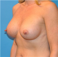 Breast Augmentation After Photo by Joshua Cooper, MD; Seattle, WA - Case 34373