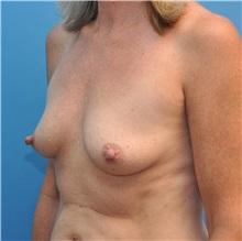 Breast Augmentation Before Photo by Joshua Cooper, MD; Seattle, WA - Case 34373