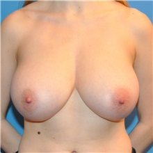 Breast Reduction Before Photo by Joshua Cooper, MD; Seattle, WA - Case 34601