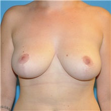 Breast Reduction After Photo by Joshua Cooper, MD; Seattle, WA - Case 34603