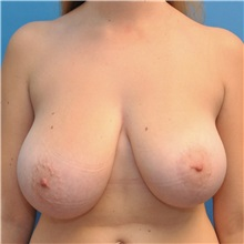 Breast Reduction Before Photo by Joshua Cooper, MD; Seattle, WA - Case 34603
