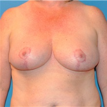 Breast Reduction After Photo by Joshua Cooper, MD; Seattle, WA - Case 34635