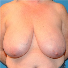 Breast Reduction Before Photo by Joshua Cooper, MD; Seattle, WA - Case 34635