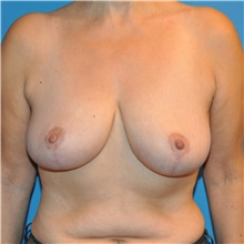 Breast Reduction After Photo by Joshua Cooper, MD; Seattle, WA - Case 34638