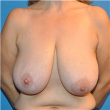 Breast Reduction Before Photo by Joshua Cooper, MD; Seattle, WA - Case 34638