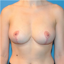 Breast Reduction After Photo by Joshua Cooper, MD; Seattle, WA - Case 34640